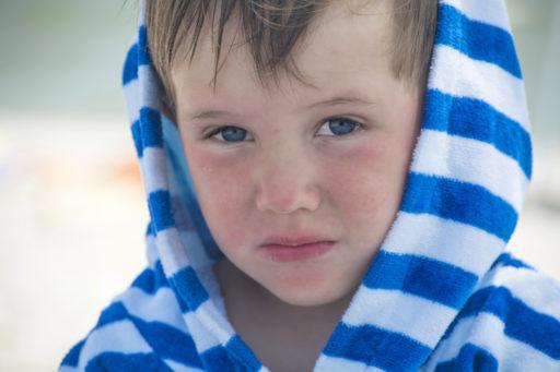 Seborrhoïsch eczeem: besmettelijk of niet?