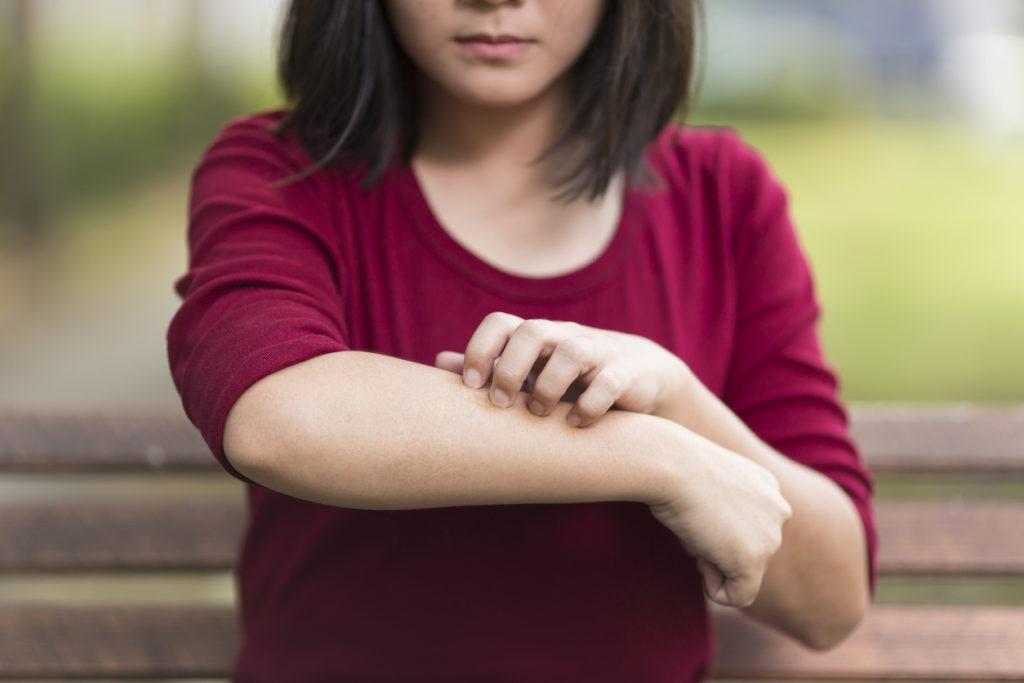 Signalen dat je kind atopisch eczeem heeft