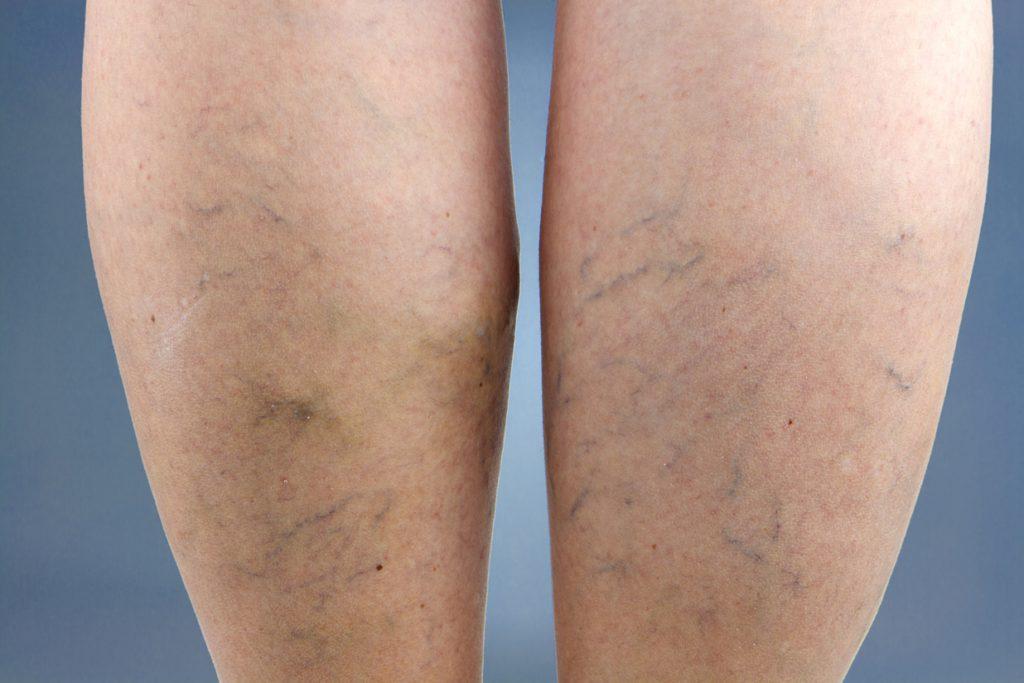 Spataderbehandeling: Met schuim of laser?