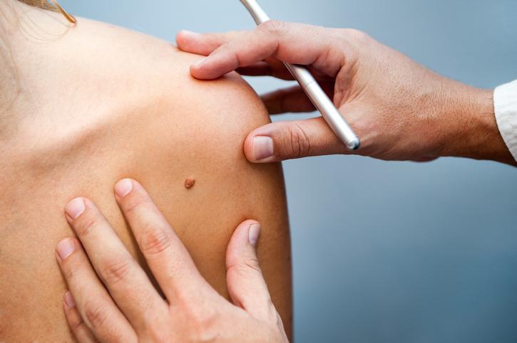 De stadiumindeling bij melanomen