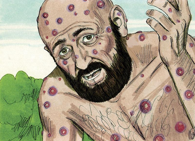 De symptomen van lepra