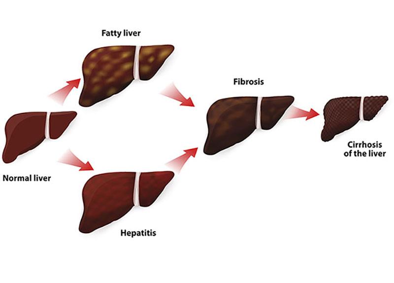 De symptomen van levercirrose