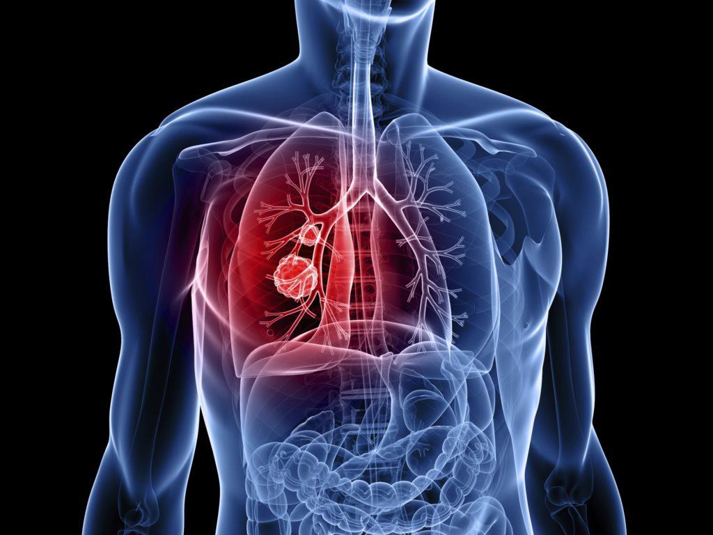 Symptomen van Longkanker