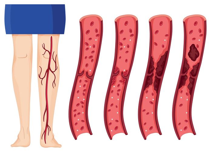 Trombose & Longembolie: Symptomen, Oorzaken & Behandeling