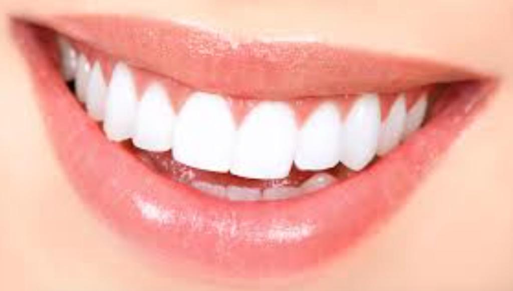 Verkleurde tanden bleken? Prijs & Methoden!
