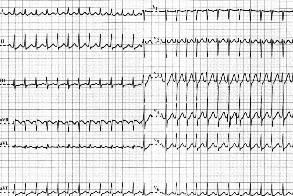 Versneld hartritme (Tachycardie)