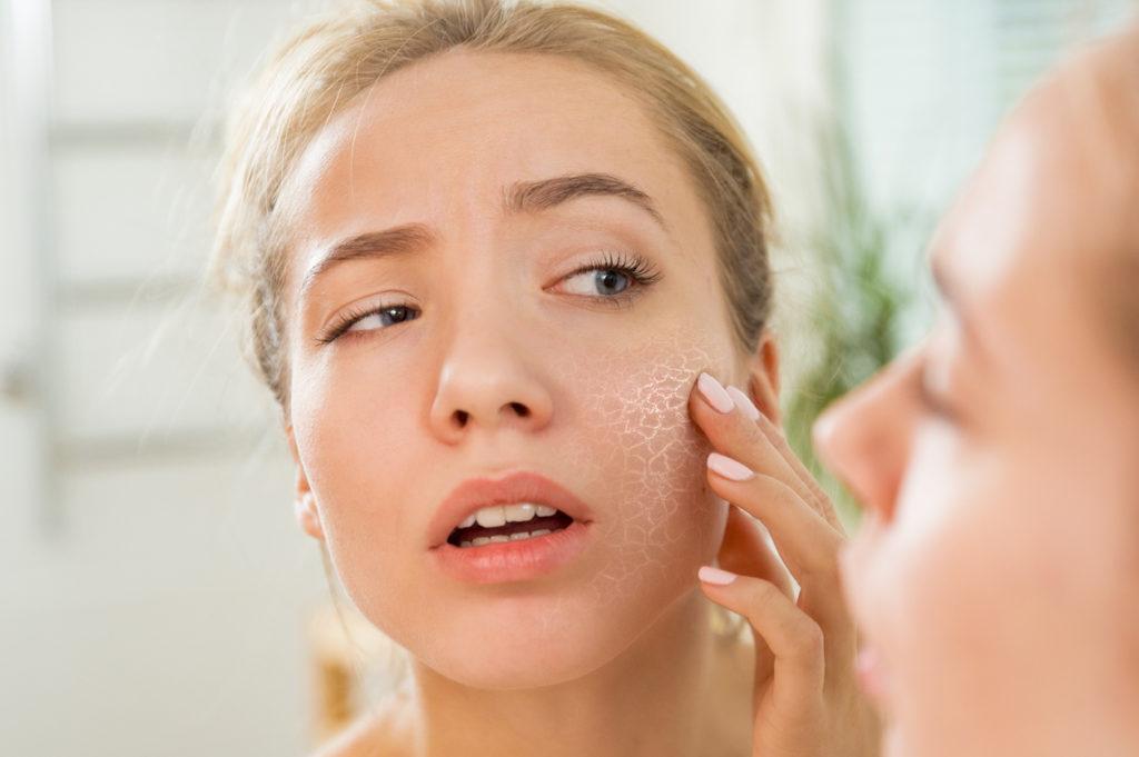 Wat doet stress met onze huid?