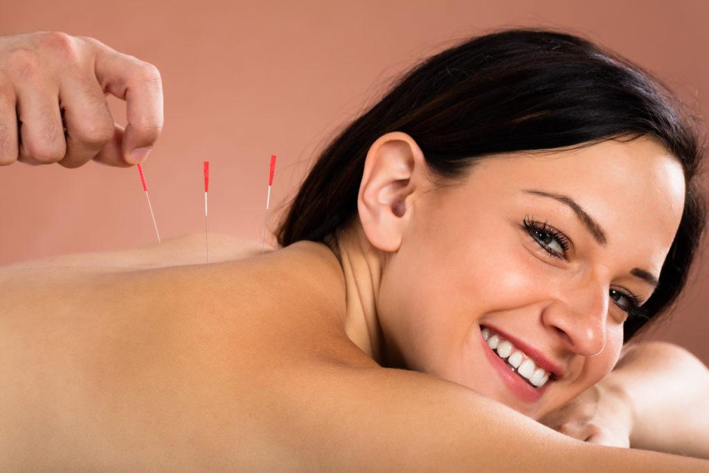 Wat kan ik verwachten van een acupunctuur behandeling?