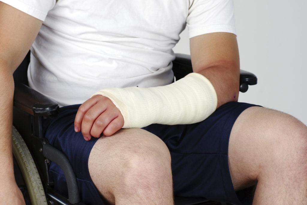 Wat zijn de Symptomen van een Breuk bij het Sporten?