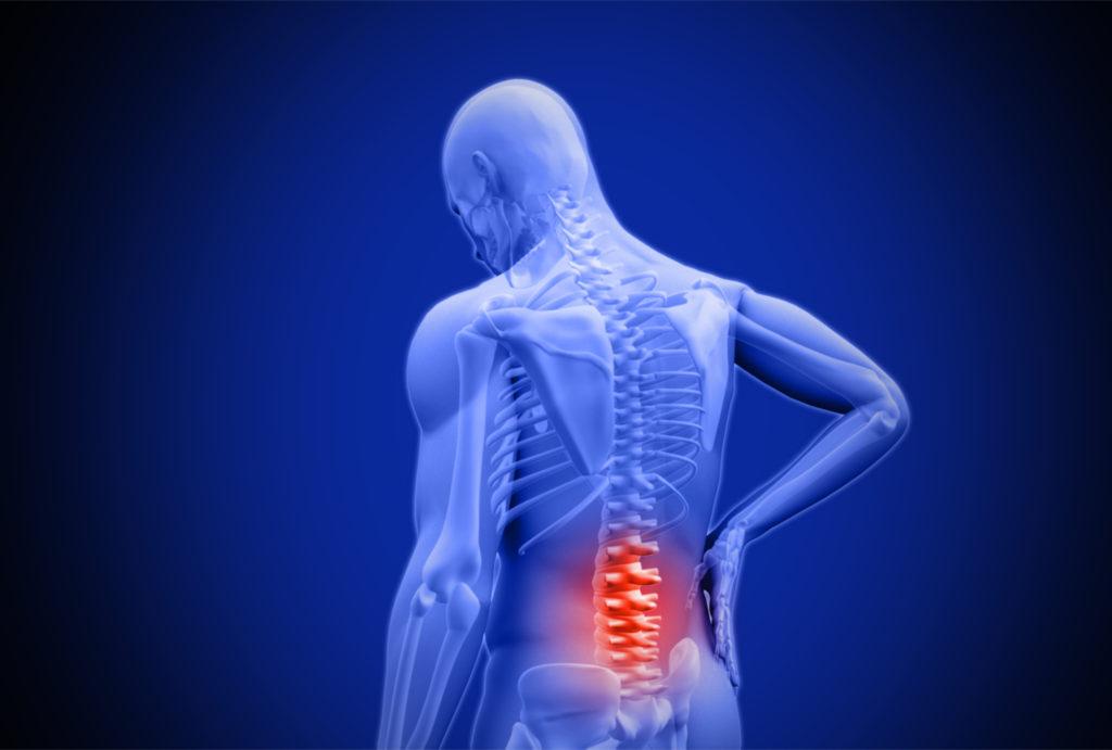 Welke Symptomen zijn er bij Wervelletsels?